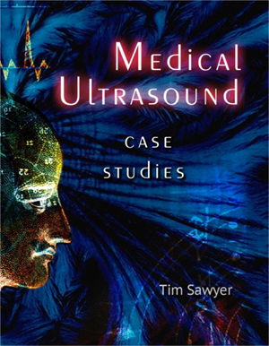 Medical Ultrasound book cover